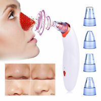 Cupping Therapy Blackhead Remover Vacuum Extractor Machine Facial Pore Cleanser