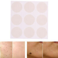 Skin Acne print Scar Away Patch Silicone Gel Sheet Wound Marks Treatment Remo Cw