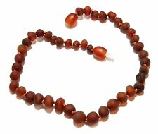 Adult Amber Anklet for Woman Genuine RAW Choose Color Baltic Amber Beads