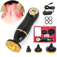 Fat Shaping Burning Body Guasha Scraping Machine Therapy Vacuum Suction Detox CE
