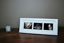 12 Week Pregnancy Baby Ultrasound Scan 1st Photo Triple Aperture Frame