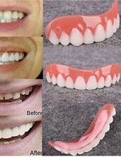 Zahnverblendung  Oberkiefer
