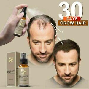 Magical Hair Growth Spray Beard Growth Eyelash Growth Hair loss Prevention Spray