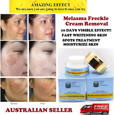 Melasma Freckle Removing Cream,Fast Whitening Skin,Spots Treatment, Moisturized