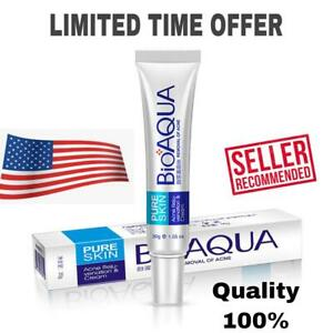 BioAqua Pure Skin Anti Acne Cream Gel Scar Blemish Stretch Mark Removal Face