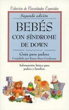 Bebés con síndrome de Down: guía para pa