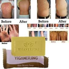 1pc Sulfur Soap oil-control Acne Treatment Blackhead Remover Cleanser Skin Care