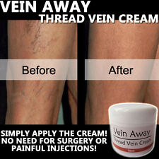 VEIN AWAY CREAM LOTION ANTI VARICOSE SPIDER THREAD VEIN 100% NATURAL HERBAL