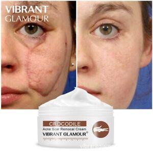 VIBRANT GLAMOUR Crocodile Repair Scar Face Cream Removal Acne Spots Whitening