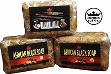 Empress and King - AFRICAN BLACK SOAP - 7 oz - All Natural - FDA Registered