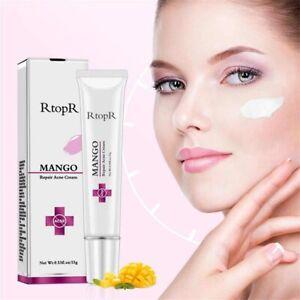 Acnex Treatment Face Cream Blackhead Repair Gel Oil