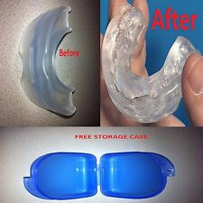 Stop Snoring CUSTOM-FIT MouthPiece Anti Snore Sleep Apnea Boil & Bite Guard