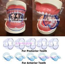 Dental Anterior Posterior Mouth Opener Bite Prop Lip Retractor Cheek Expander