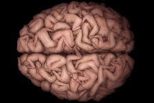 Framed Print - The Brain made by Naked Human Bodies (Picture Body Art Medical)