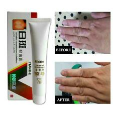 Chinese Herbal Cream For Vitiligo White Spots Leukoplakia J0E2