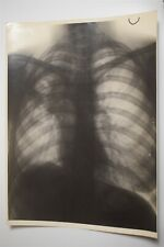 Large Chest X-Ray Photo Of 1938 France