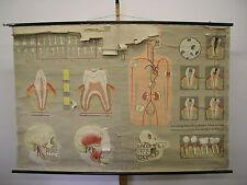 Wall Mural Teeth TEETH CARIES Dentist 170x115 Vintage Tooth Doc Wall Chart ~ 1970