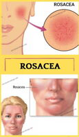 Rosacea Treatment Cream Nose Redness Removal Anti bacterial with ROSE CONCRETE