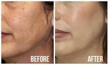 Anti Redness & Soothing Cream Flushing-Prone Skin No More Spider Vein on Face