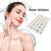 36Pcs Set Clear Acne Pimple Master Patch Invisible Face Spot Scar Care Treatme