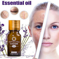 Ultra Brightening Spotless Oil Skin Face Care Natural Pure Remove Ance №q
