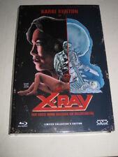 X-Ray - Hospital Massacre (1983) - Large Hardbox - Blu-ray - New & Sealed & Limi