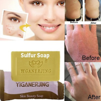 Exfoliation Body Cleansing Product Skin Care Anti Acne Sulfur Soap