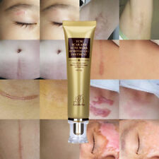 30g TCM SCAR AND ACNE MARK REMOVAL GEL OINTMENT (LanBeNa) Acne Scar Cream Hot