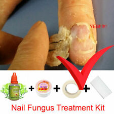 Chinese Medicine Herbs Toe Nail Fungus Treatment Anti Fungal Nail Infection Kit