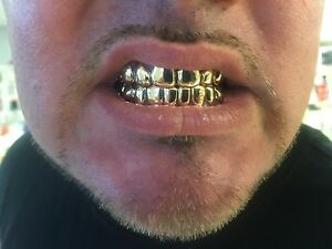 14k Gold Grills 8 Top & 8Bottom Solid With Deep Cut/Permanent Looking Custom Fit