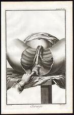 Cabinet de curiosité planche affiche A3 anatomie humaine acte de chirurgie n°4
