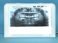 RÖNTGENBILDBETRACHTER LED NEU Röntgenfilm Röntgen Zahnarztstuhl Zahnarzteinheit