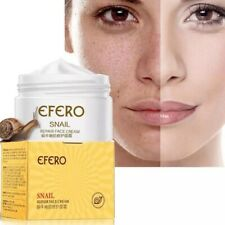 EFRO Snail Face Serum Cream Moisturizing Firming Aging Acne Treatment Whitening