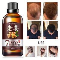 Fast Hair Growth Dense Regrowth Ginger Serum Oil Anti Loss Treatment Essence Lw