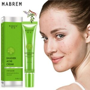 ntix Acne Removal Cream Acne Treatment Fade Acne Spots Oil Control Shrink Pores