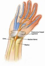 IMAK Adjustable Pil-O-Splint for Carpal Tunnel, Night Time Pain Relief Brace