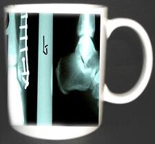 X-RAY COFFEE MUG RADIOLOGY RADIOLOGIST. LIMITED EDITION