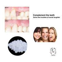 dentaire Colle solide Matériau de changement de dents Remplissage des dents