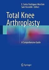 Total Knee Arthroplasty: A Comprehensive Guide