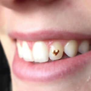 Heart Teeth Gem Dental Tooth Jewelry Grillz Rose Gold Plated 925 Sterling Silver