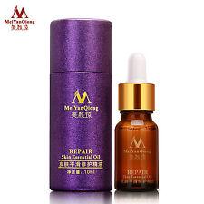 meiyanqiong LAVANDA PROFUMI Olio essenziale aromaterapia OLIO ESSENZIALE 10ML