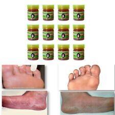 12 x5g. Mea Kularb Famous Thai Ointment Foot Fungus and Nail Hamar Healing No.82