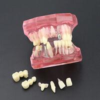 Dental Typodont Teeth Model Implant 2001 Pink