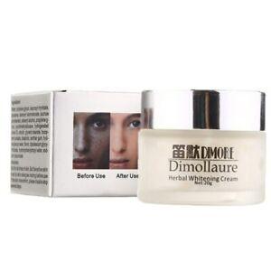 Whitening Freckle Strong Removal melasma Acne Spots pigment Melanin face cream