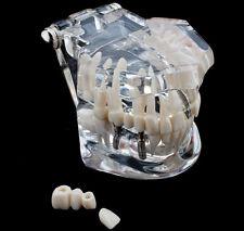 Desmontable Implante Restauración Modelo Prótesis Patología Anatómica Dental