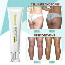 Effective Body Whitening Cream for Sensitive Area Armpit Legs Knees Private Part