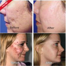 Magic Cream acne spot pox box big large pore raise deep scar Resurface Gel Serum