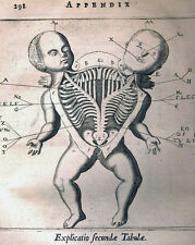 Vintage Medical Anatomy Illustration Siamese Twin Surgery Real Canvas Art Print