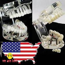 new Dental lab supply Implant Disease Teeth Model w Restoration & Bridge Tooth
