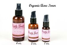 Acne Therapy Toner Organic Blemish Blackhead Oily Body Face Pimples Vegan 1 Oz